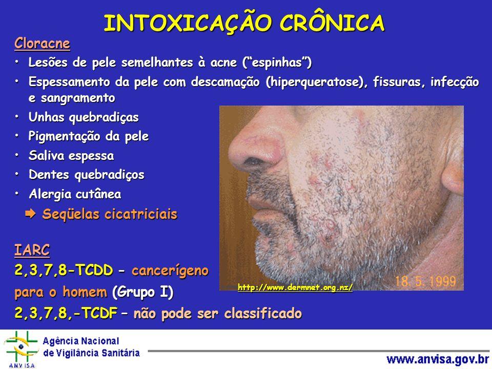 INTOXICAÇÃO CRÔNICA Cloracne IARC 2,3,7,8-TCDD - cancerígeno