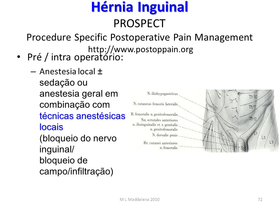 Hérnia Inguinal PROSPECT Procedure Specific Postoperative Pain Management http://www.postoppain.org
