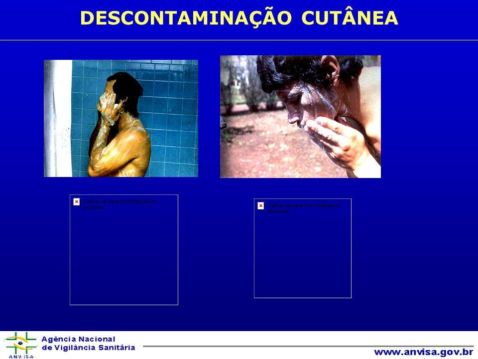 DESCONTAMINAÇÃO CUTÂNEA