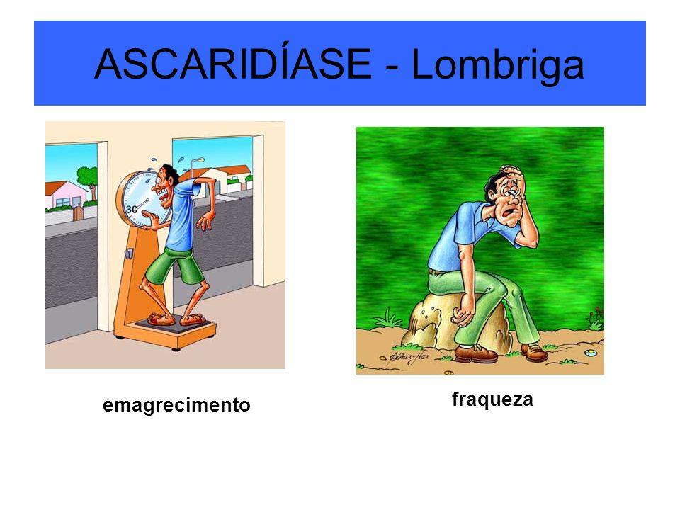 ASCARIDÍASE - Lombriga