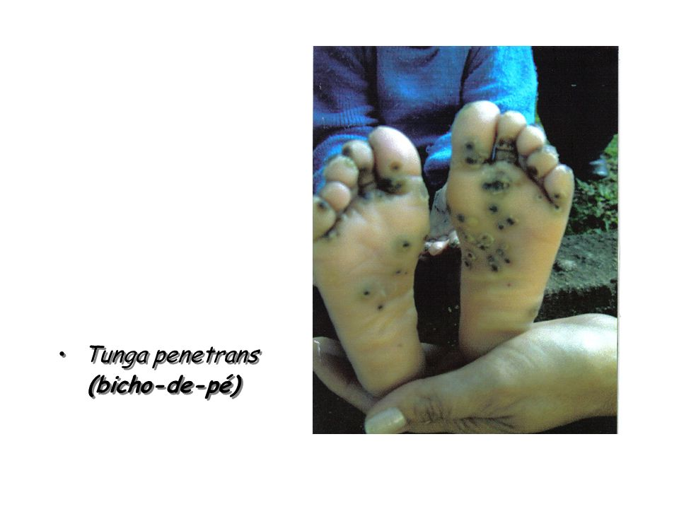 Tunga penetrans (bicho-de-pé)
