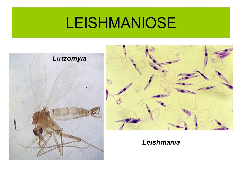LEISHMANIOSE Lutzomyia Leishmania
