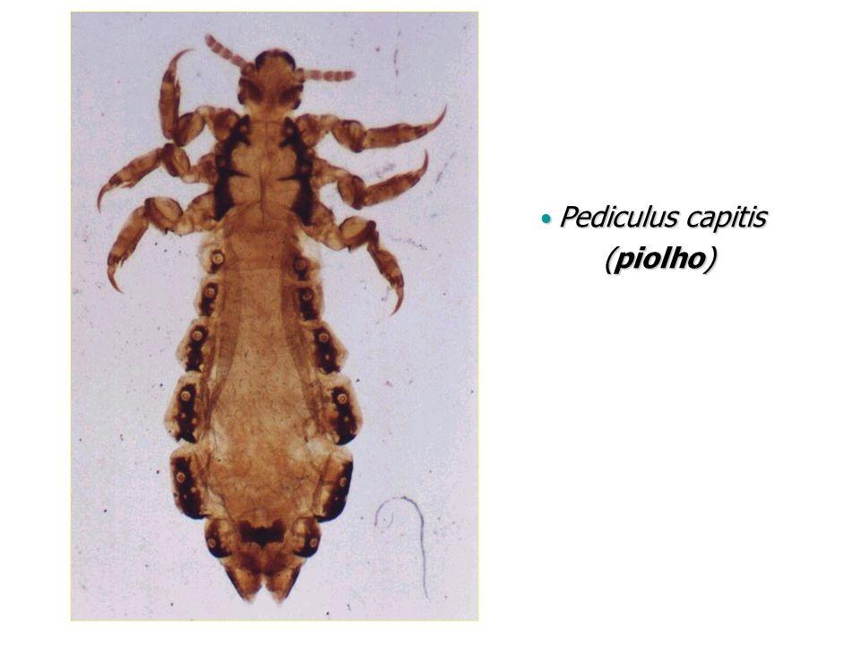Pediculus capitis (piolho)