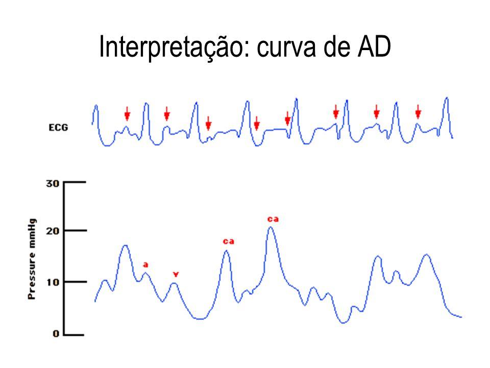 Interpretação: curva de AD
