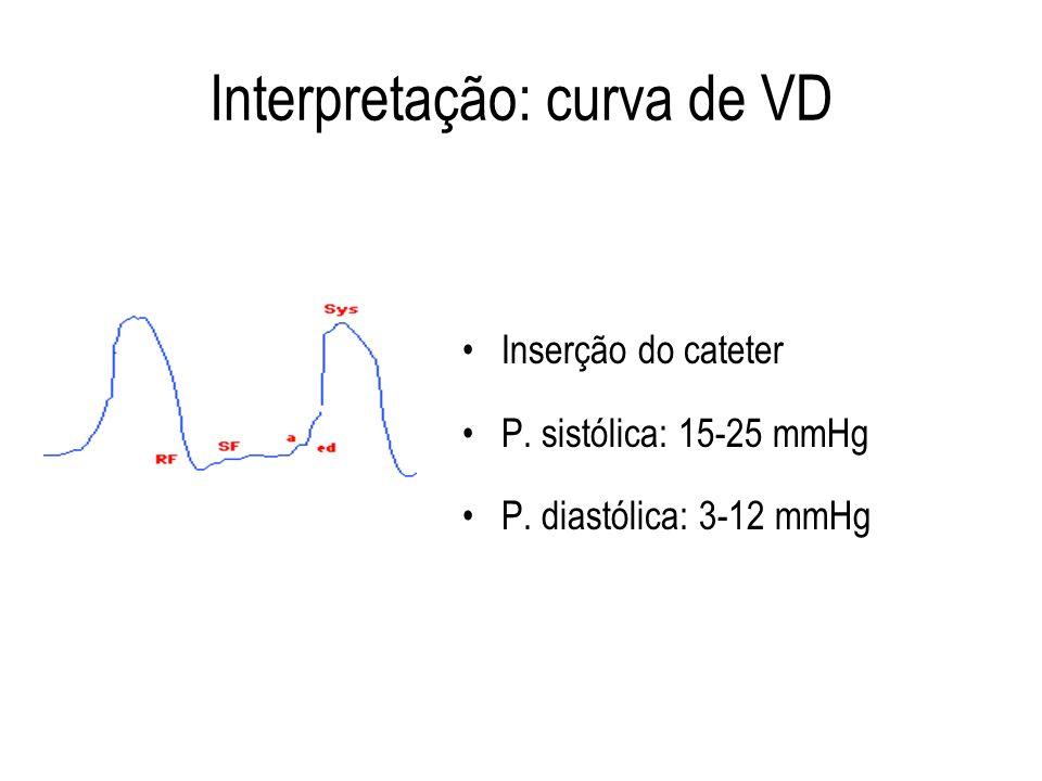 Interpretação: curva de VD
