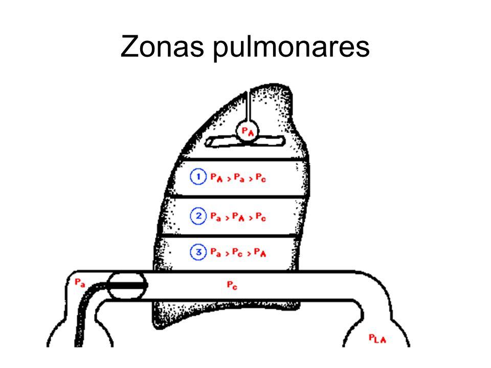 Zonas pulmonares
