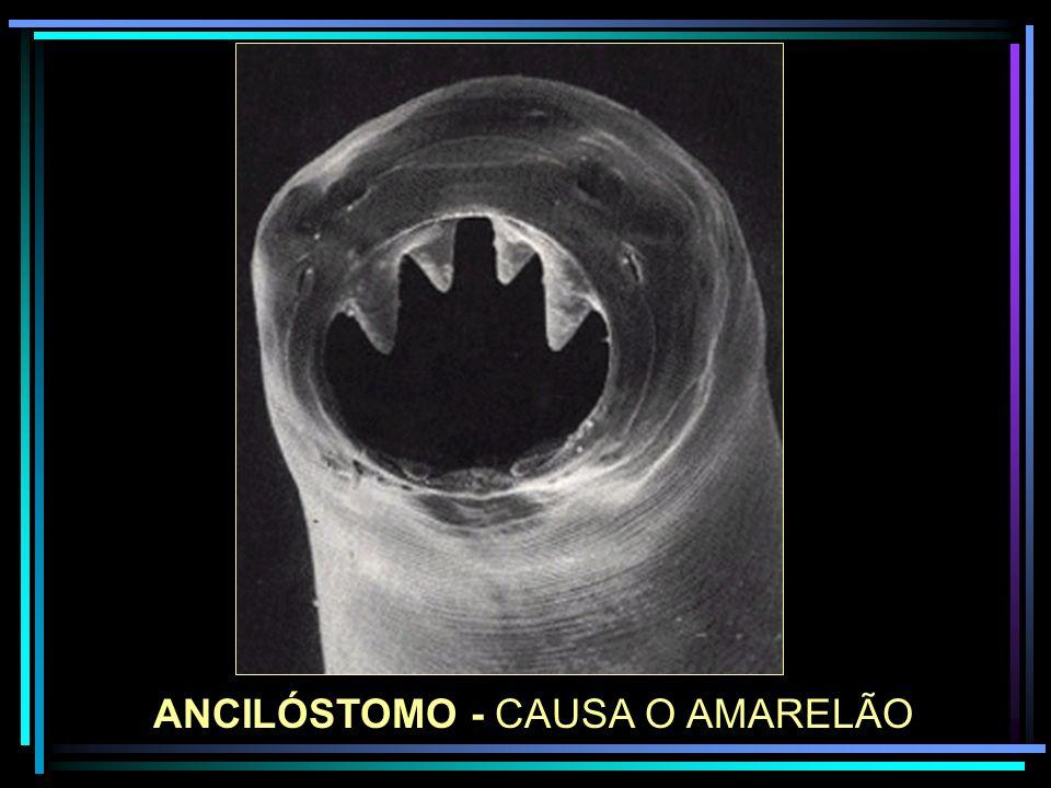 ANCILÓSTOMO - CAUSA O AMARELÃO