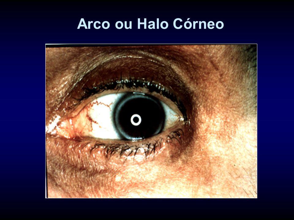 Arco ou Halo Córneo