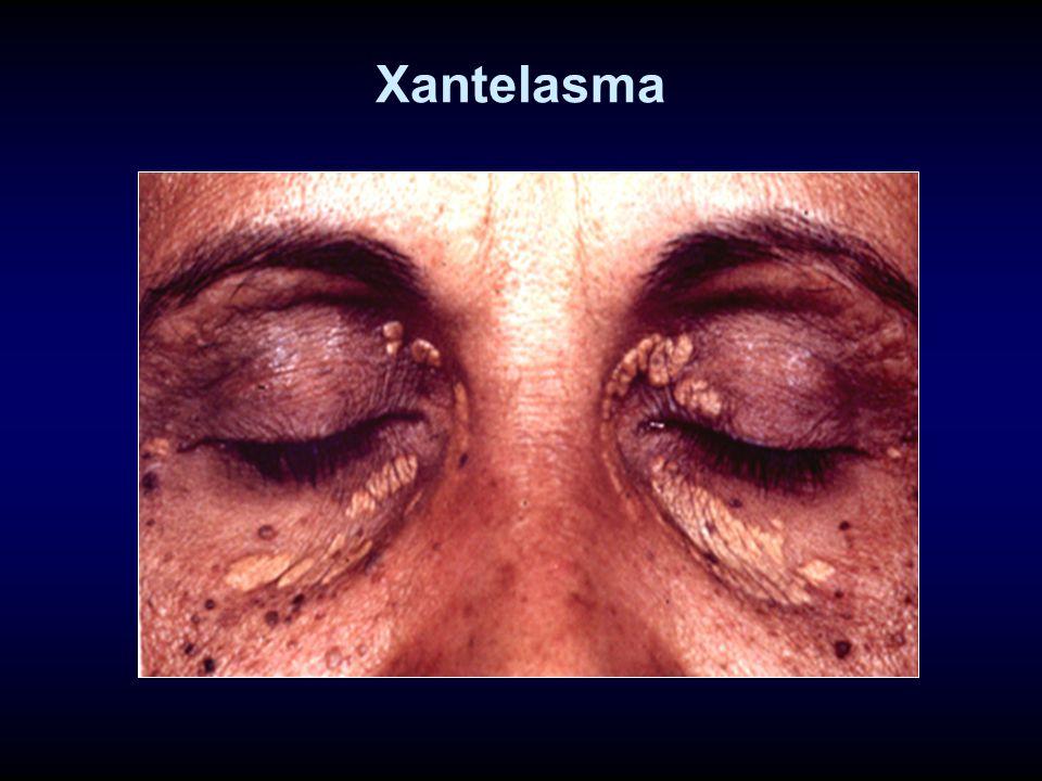 Xantelasma