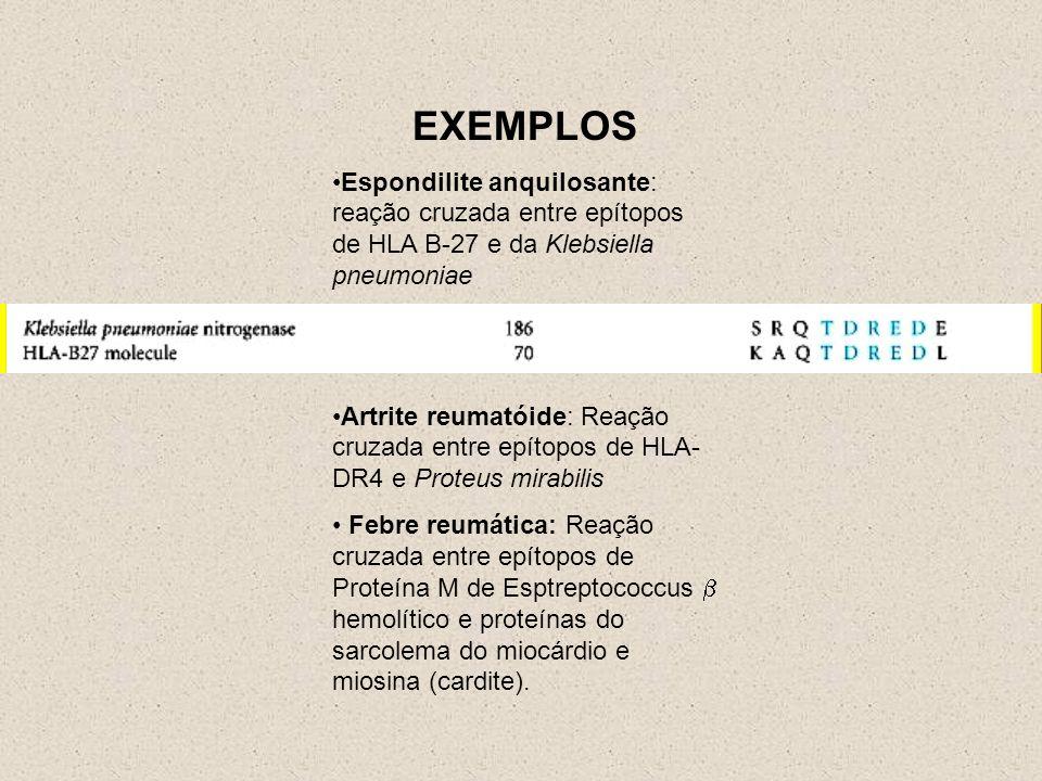 EXEMPLOS Espondilite anquilosante: reação cruzada entre epítopos de HLA B-27 e da Klebsiella pneumoniae.
