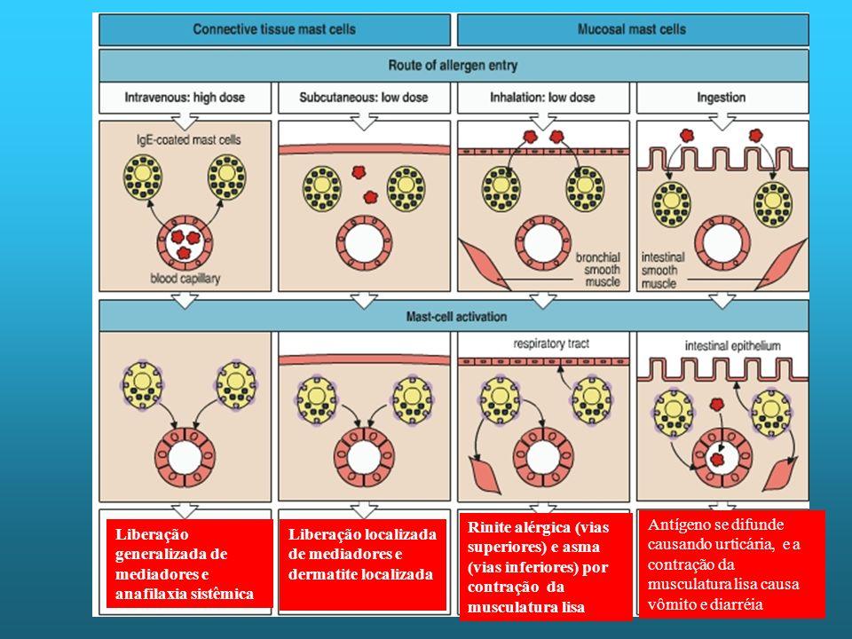 Rinite alérgica (vias superiores) e asma (vias inferiores) por contração da musculatura lisa