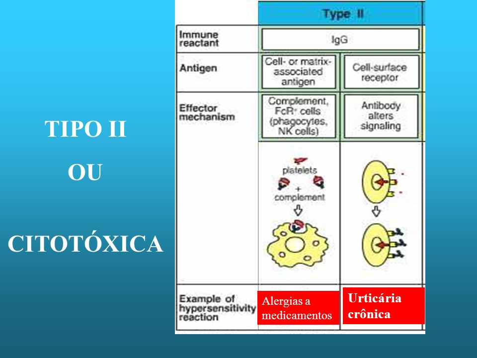 TIPO II OU CITOTÓXICA Urticária crônica Alergias a medicamentos