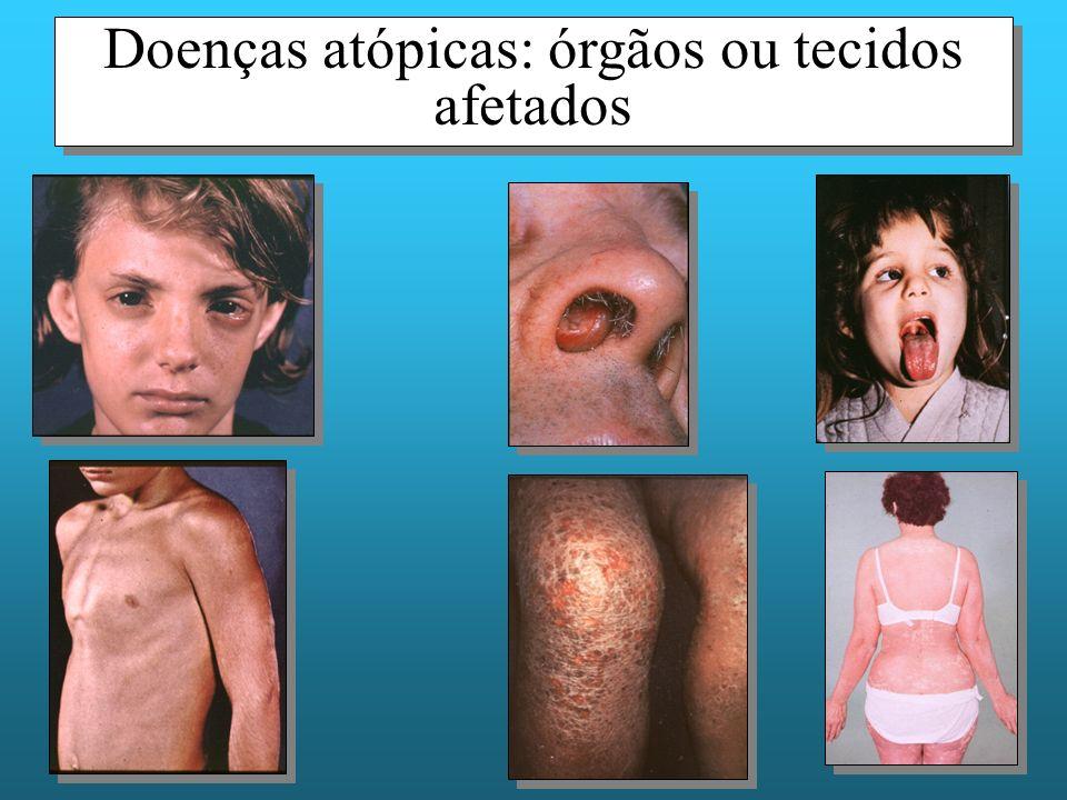 Doenças atópicas: órgãos ou tecidos afetados