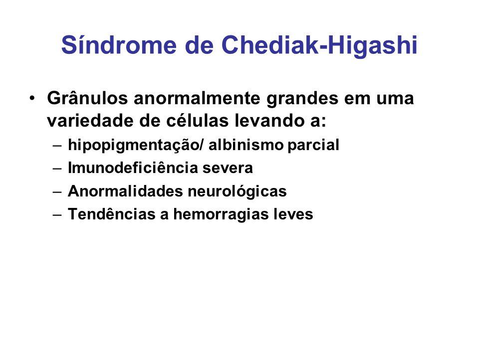 Síndrome de Chediak-Higashi