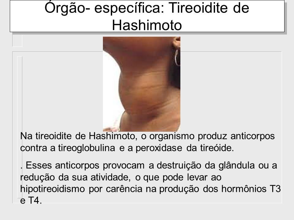 Órgão- específica: Tireoidite de Hashimoto