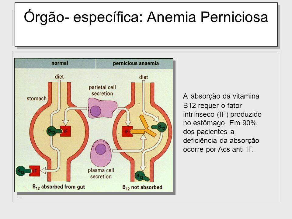 Órgão- específica: Anemia Perniciosa