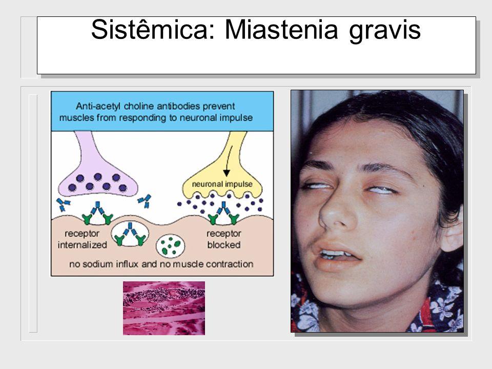 Sistêmica: Miastenia gravis