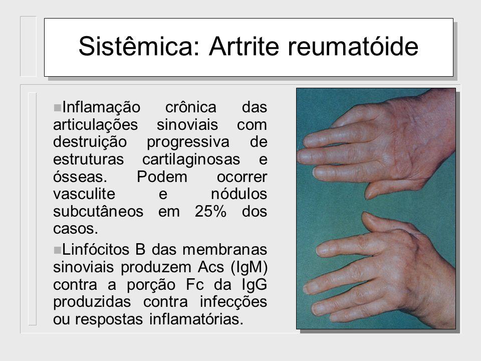 Sistêmica: Artrite reumatóide