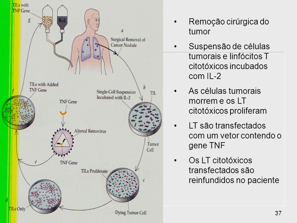 Remoção cirúrgica do tumor