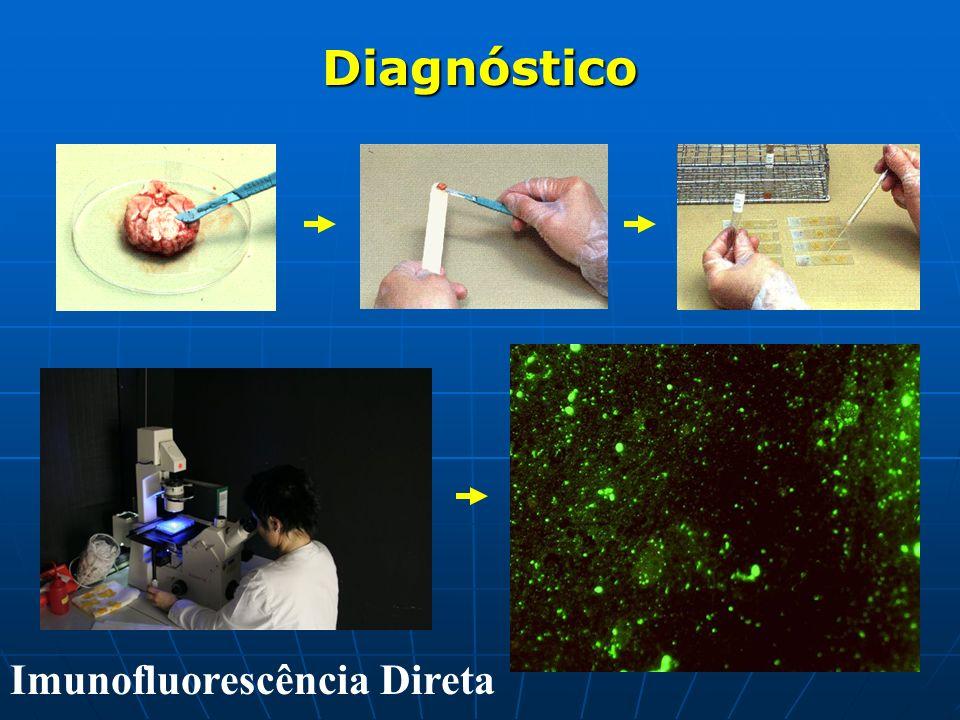 Diagnóstico Imunofluorescência Direta