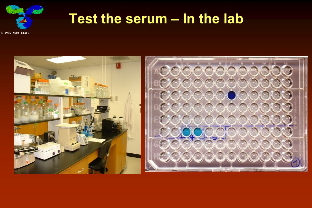 Test the serum – In the lab