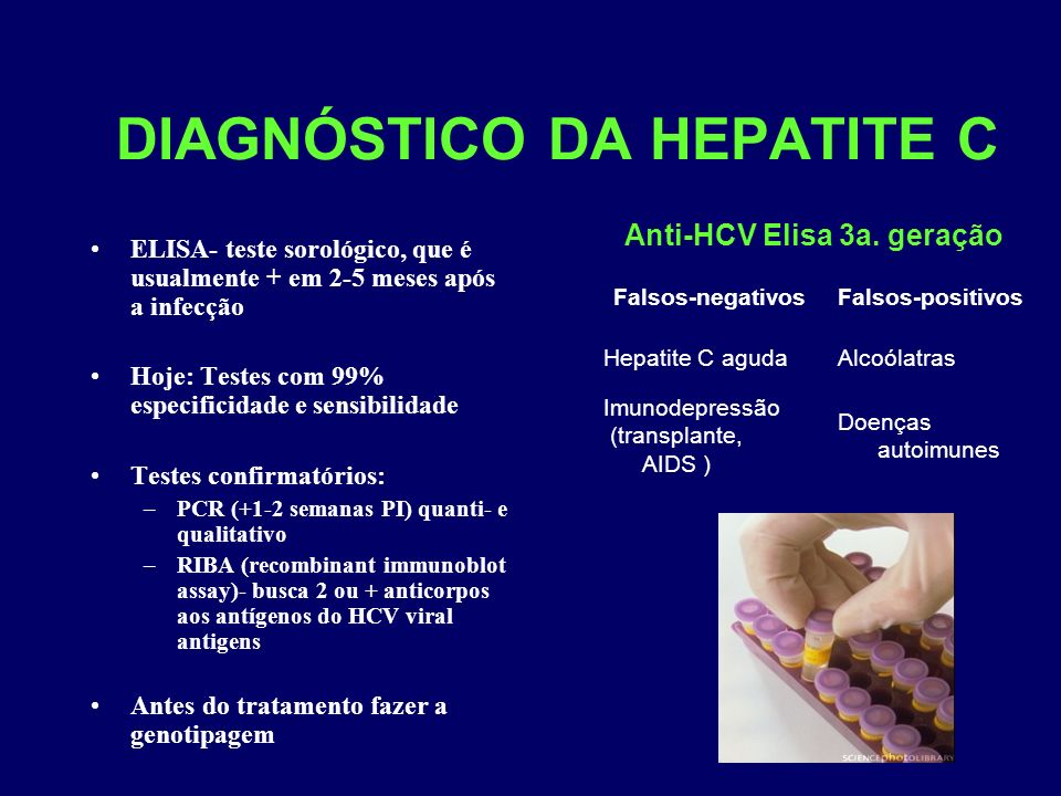 DIAGNÓSTICO DA HEPATITE C