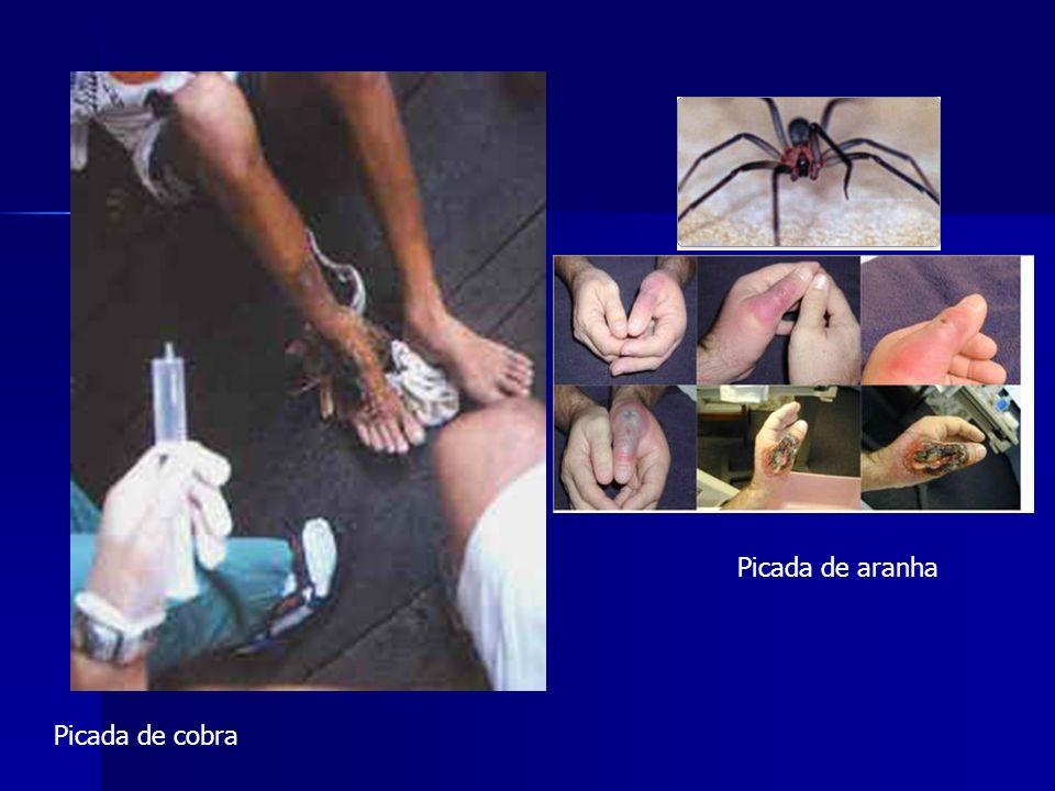 Picada de aranha Picada de cobra