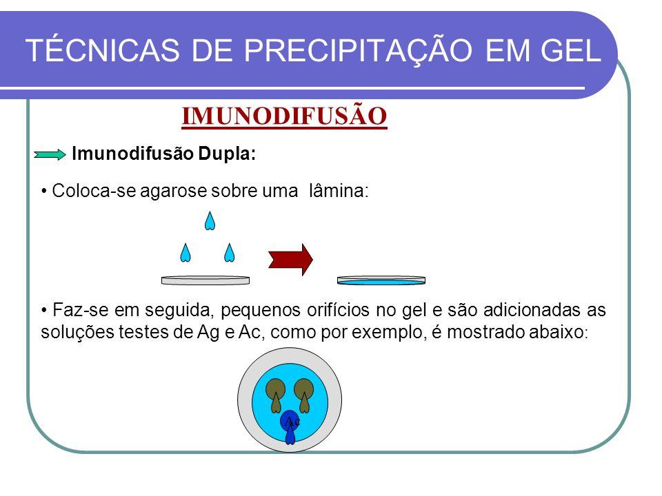 TÉCNICAS DE PRECIPITAÇÃO EM GEL