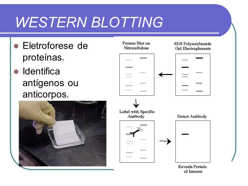 WESTERN BLOTTING Eletroforese de proteínas.