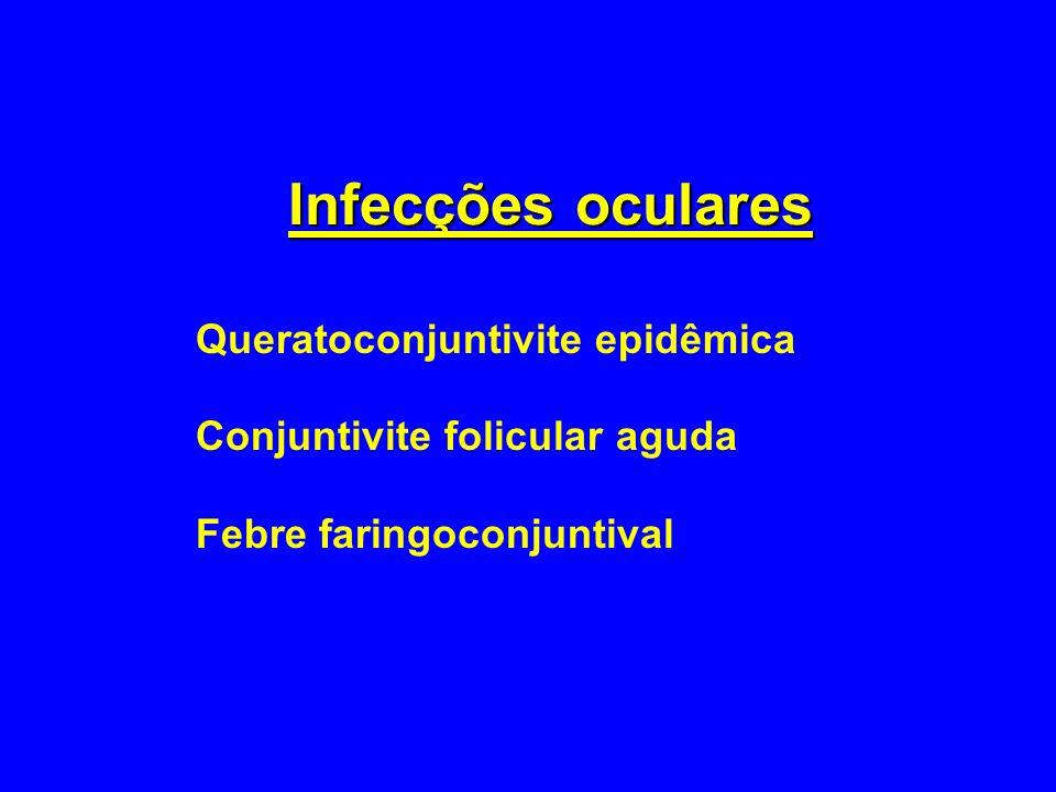 Infecções oculares Queratoconjuntivite epidêmica