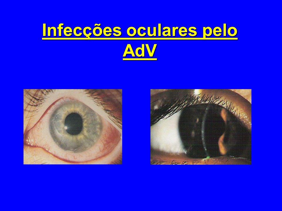Infecções oculares pelo AdV
