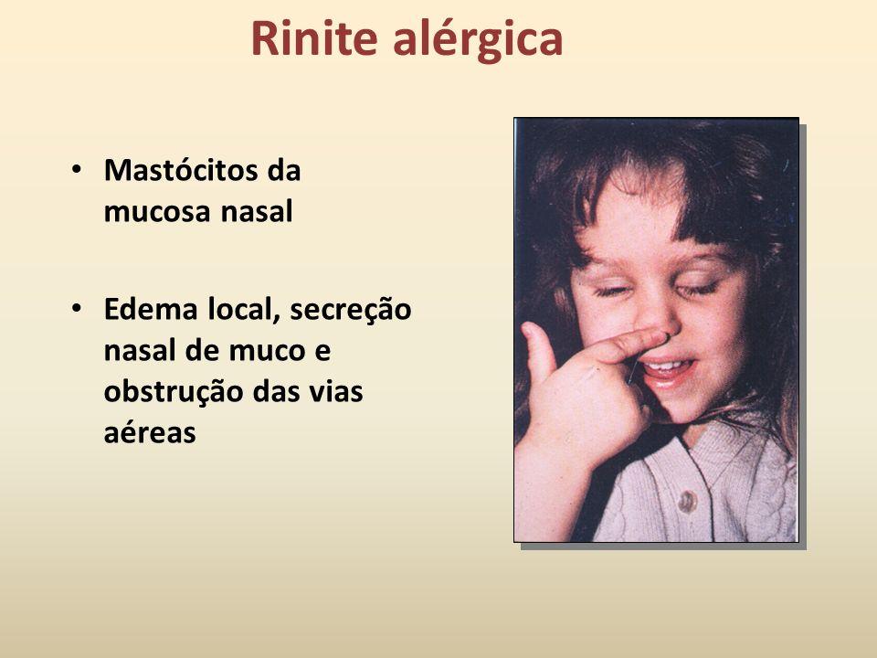 Rinite alérgica Mastócitos da mucosa nasal