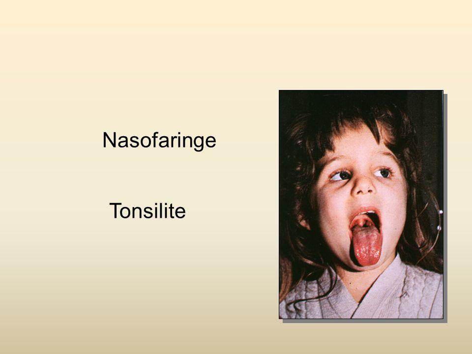 Nasofaringe Tonsilite