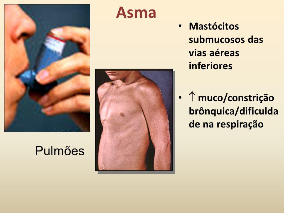 Asma Pulmões Mastócitos submucosos das vias aéreas inferiores