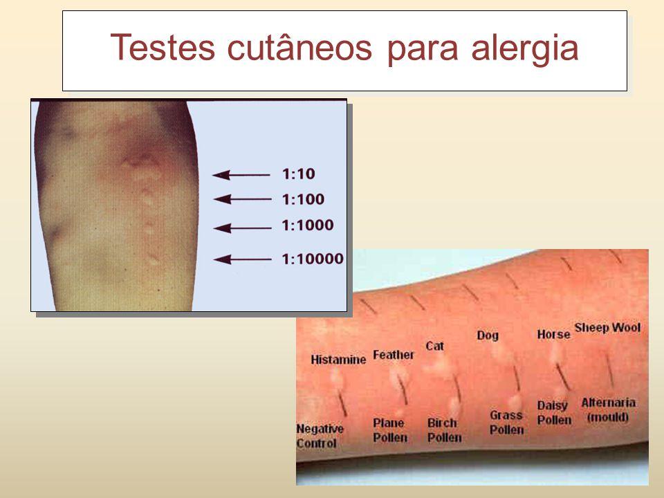 Testes cutâneos para alergia