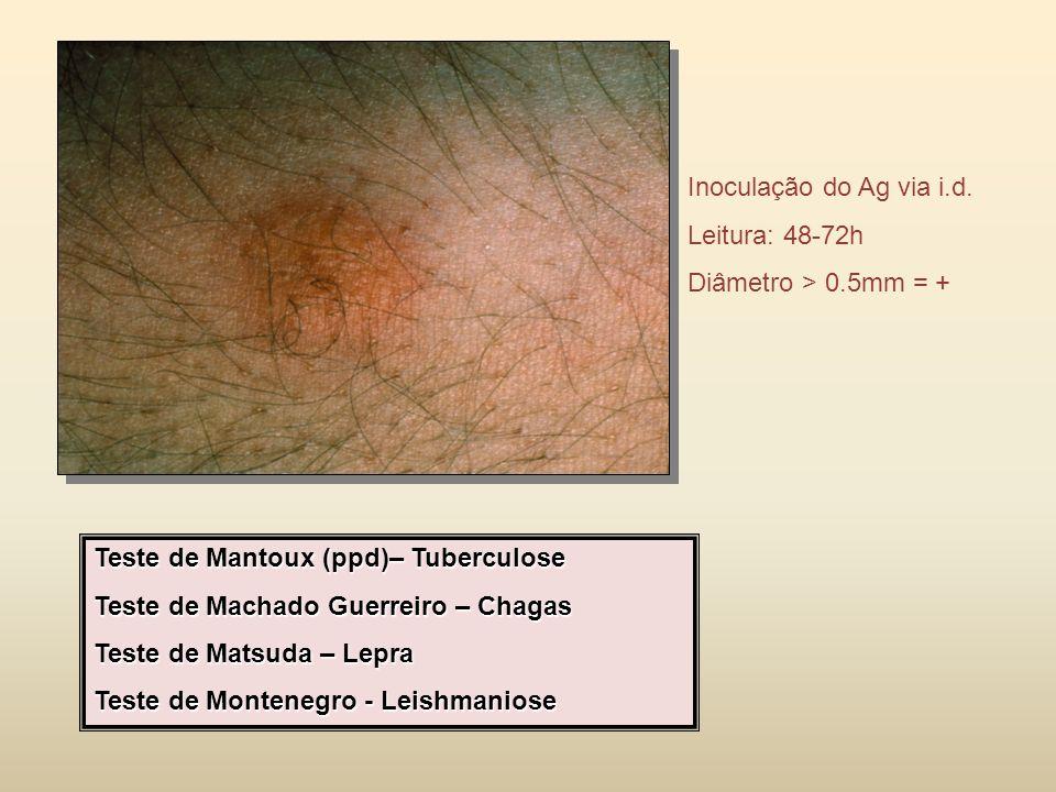 Inoculação do Ag via i.d. Leitura: 48-72h. Diâmetro > 0.5mm = + Teste de Mantoux (ppd)– Tuberculose.