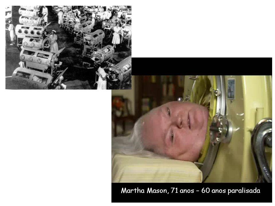 Martha Mason, 71 anos – 60 anos paralisada