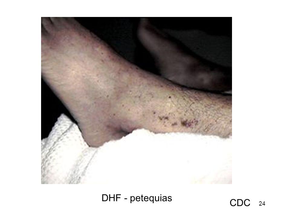 DHF - petequias CDC