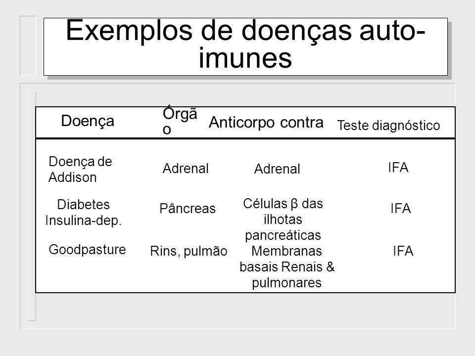 Exemplos de doenças auto-imunes