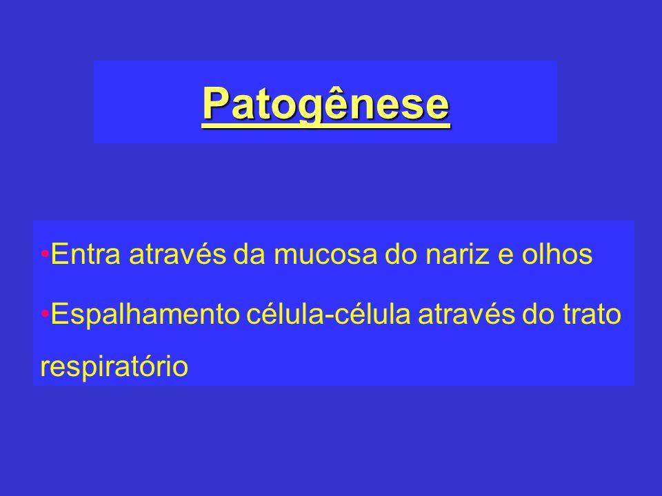 Patogênese Entra através da mucosa do nariz e olhos