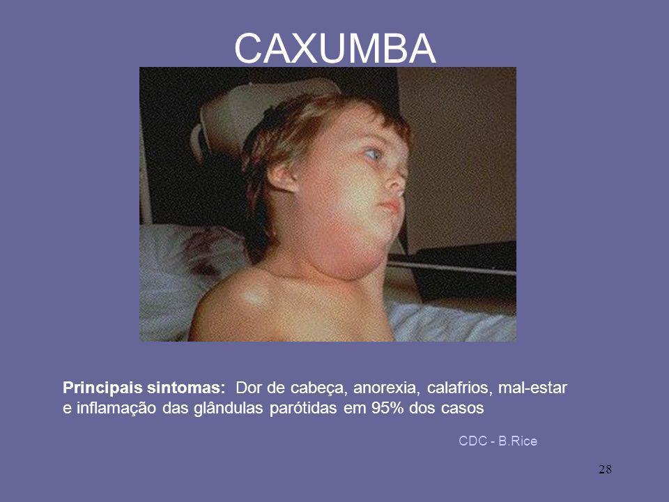 CAXUMBA Principais sintomas: Dor de cabeça, anorexia, calafrios, mal-estar e inflamação das glândulas parótidas em 95% dos casos.
