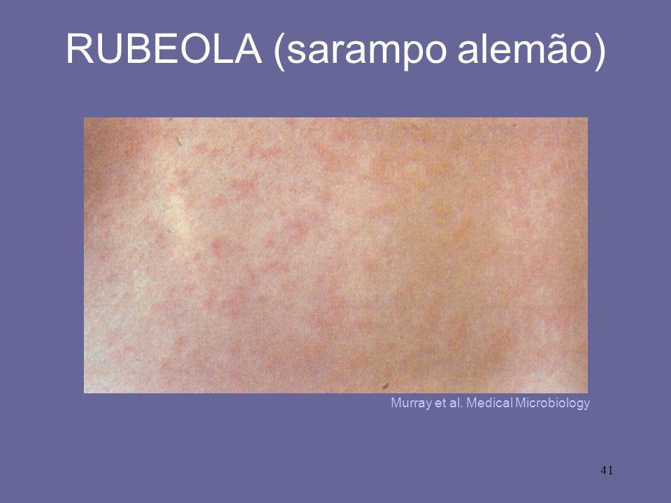 RUBEOLA (sarampo alemão)