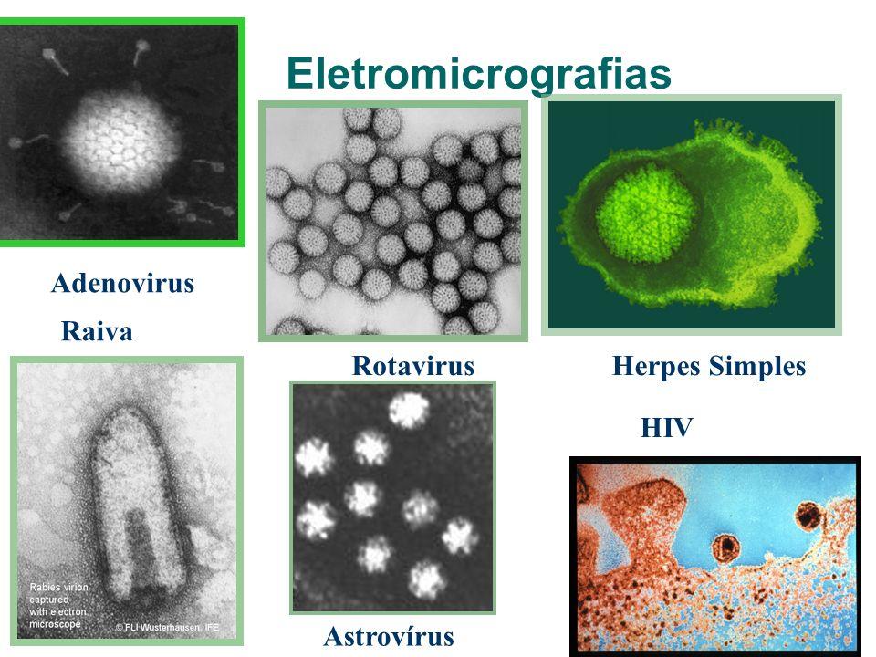 Eletromicrografias Adenovirus Raiva Rotavirus Herpes Simples HIV