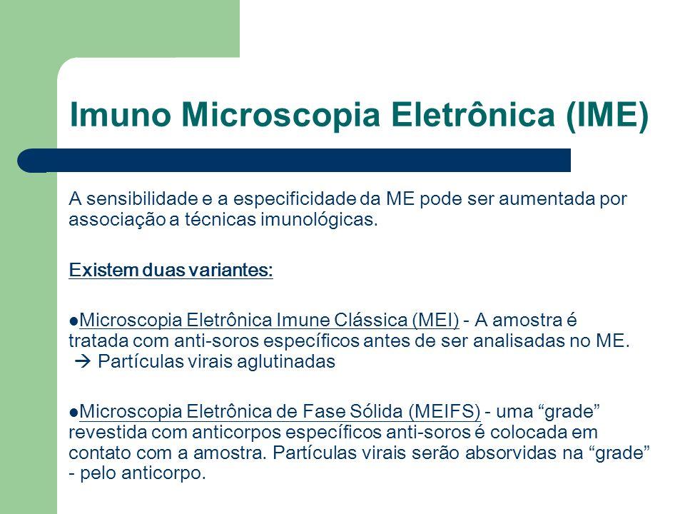 Imuno Microscopia Eletrônica (IME)