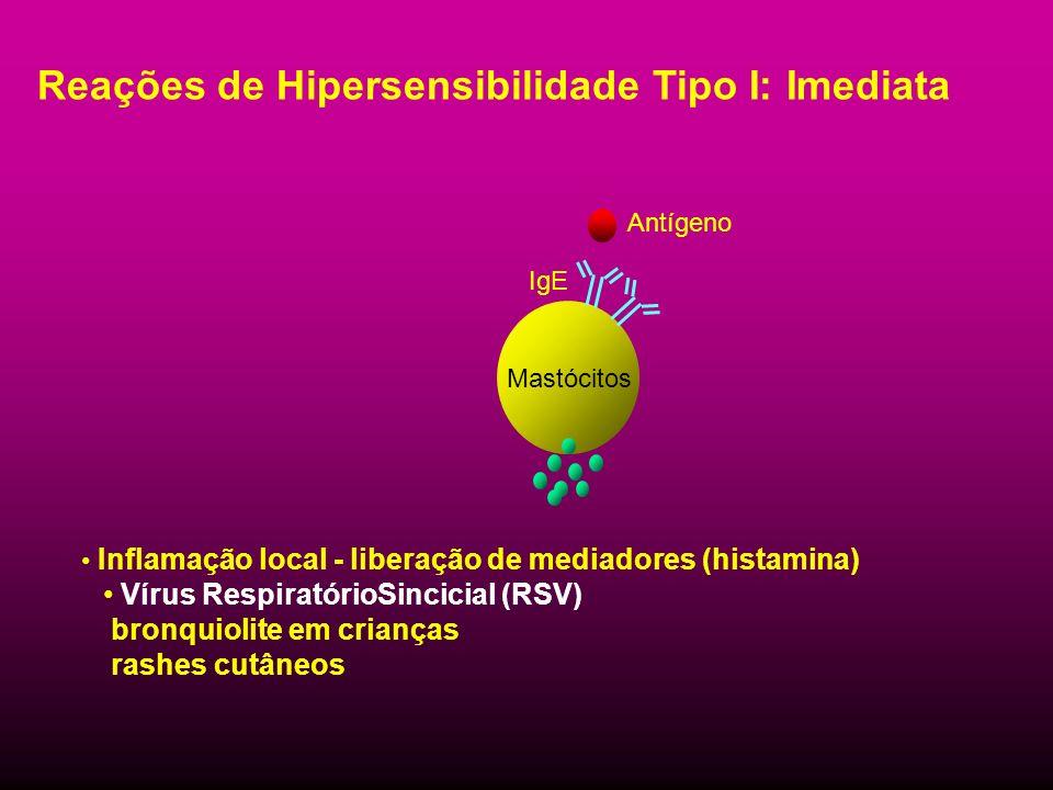 Reações de Hipersensibilidade Tipo I: Imediata