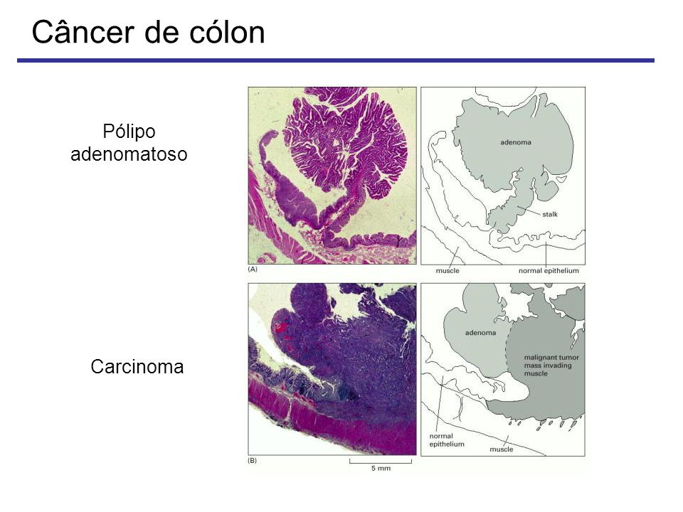 Câncer de cólon Pólipo adenomatoso Carcinoma