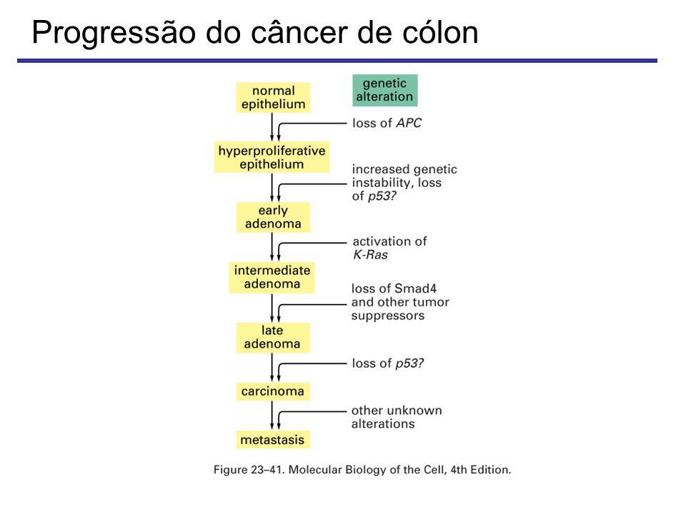 Progressão do câncer de cólon