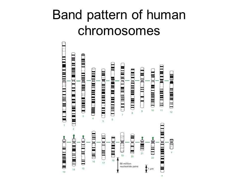 Band pattern of human chromosomes
