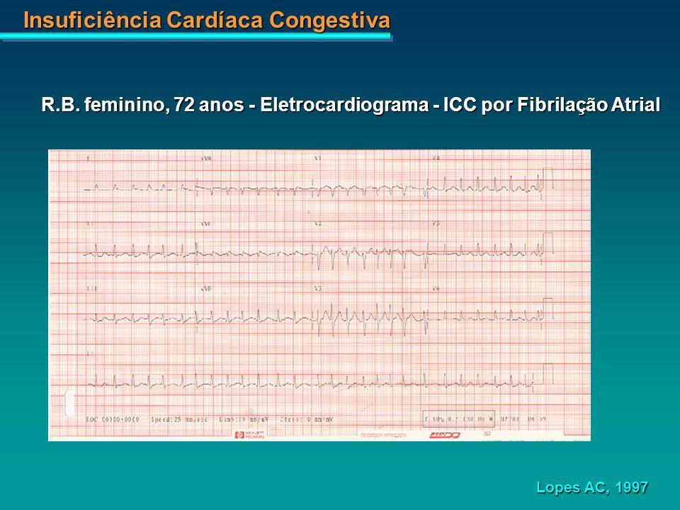 R.B. feminino, 72 anos - Eletrocardiograma - ICC por Fibrilação Atrial
