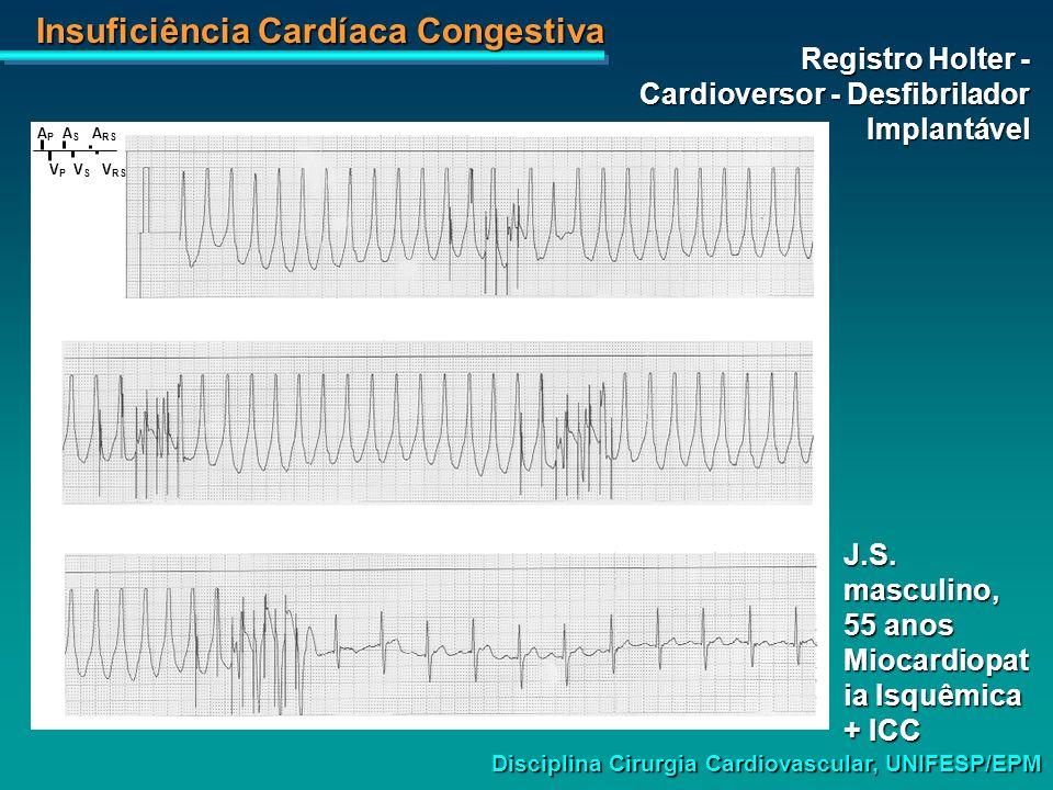 Registro Holter - Cardioversor - Desfibrilador Implantável